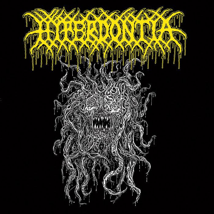 hyperdontia – a vessel forlorn