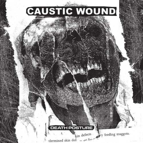caustic wound – death posture