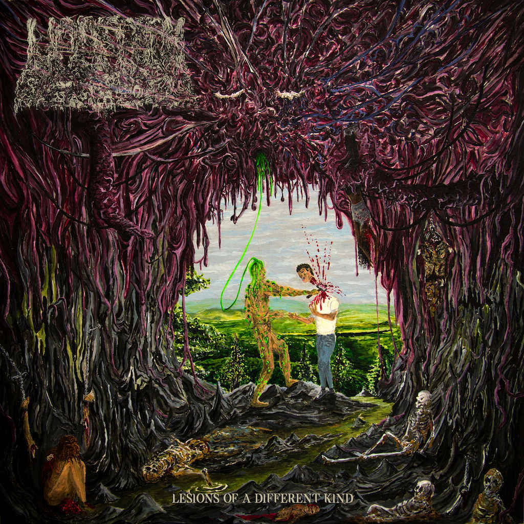 undeath – lesions of a different kind